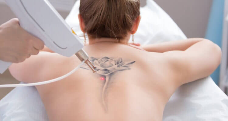 Girl Back Tattoo Removed