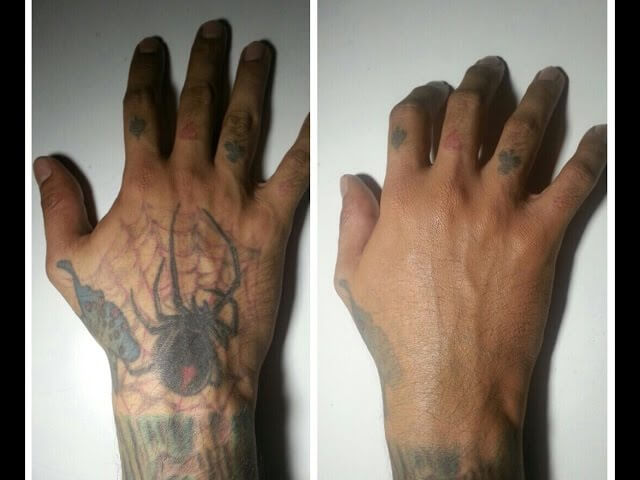 Method to Conceal a Tattoo