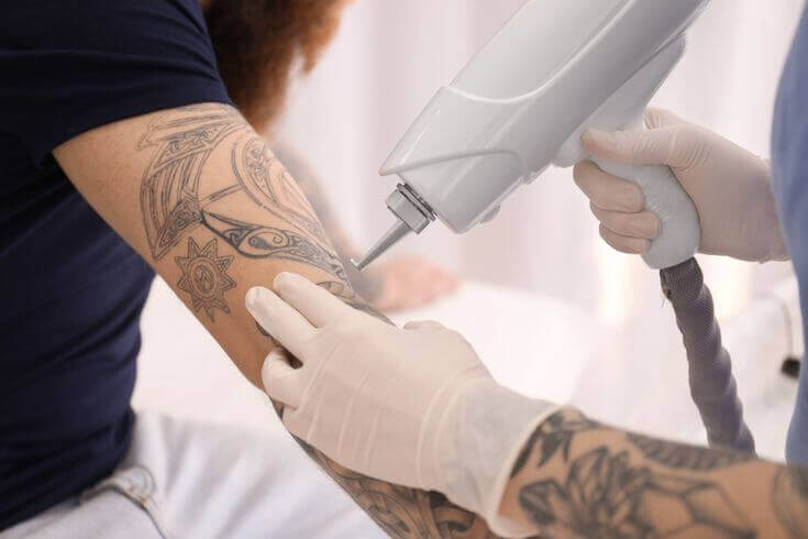 Lasers Remove Tattoos