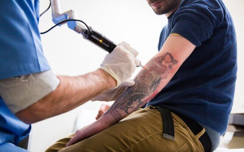 laser Tattoo removal cost in usa