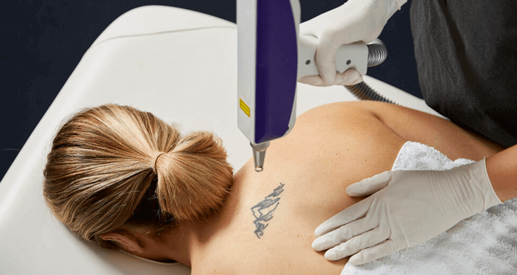 Laser Tattoo Removal Side Effects